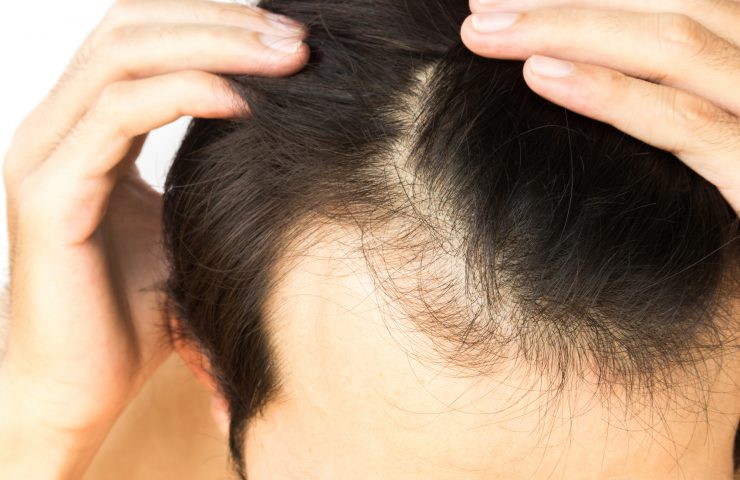 Relation Between Hair Loss And Dandruff
