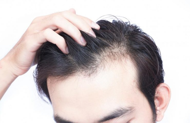 Vitamins Needed to Prevent Graying of Hair