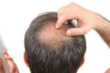 Leimo Scalp Serum - The Best Hair Thinning Solution