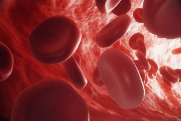 Recognizing Toxic Shock Syndrome And Blood Cancer